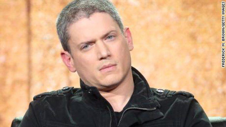 Ylli i 'Prison Break' zbulon se është autik: 'Ishte