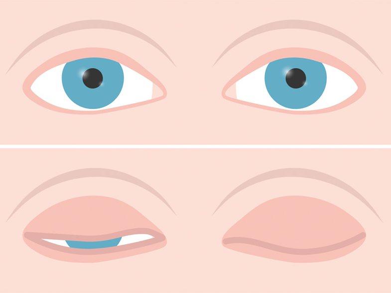 Disa arsye pse flini me sy hapur dhe kur duhet të shqetësoheni