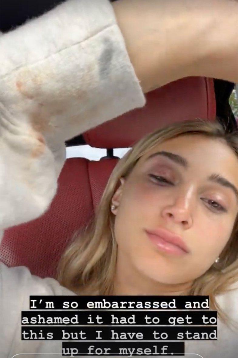 Mesazhe dhe foto tronditëse: Ish-e dashura akuzon reperin Tyga për